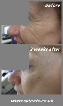 Botox treatment of crows feet